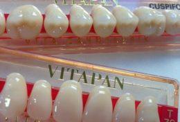 Soins dentaires : les prothèses dentaires seront-elles remboursées à 100% ?